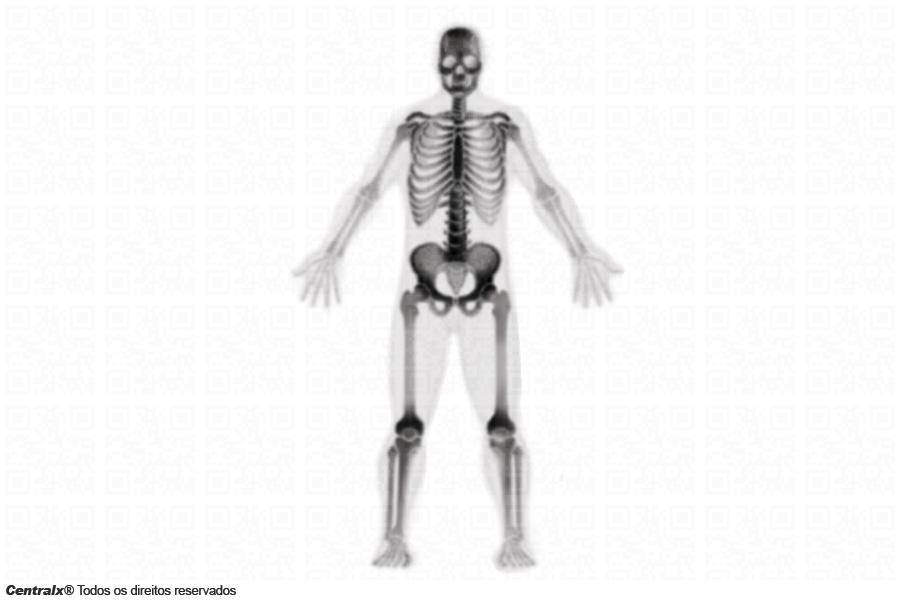 Cintilografia óssea