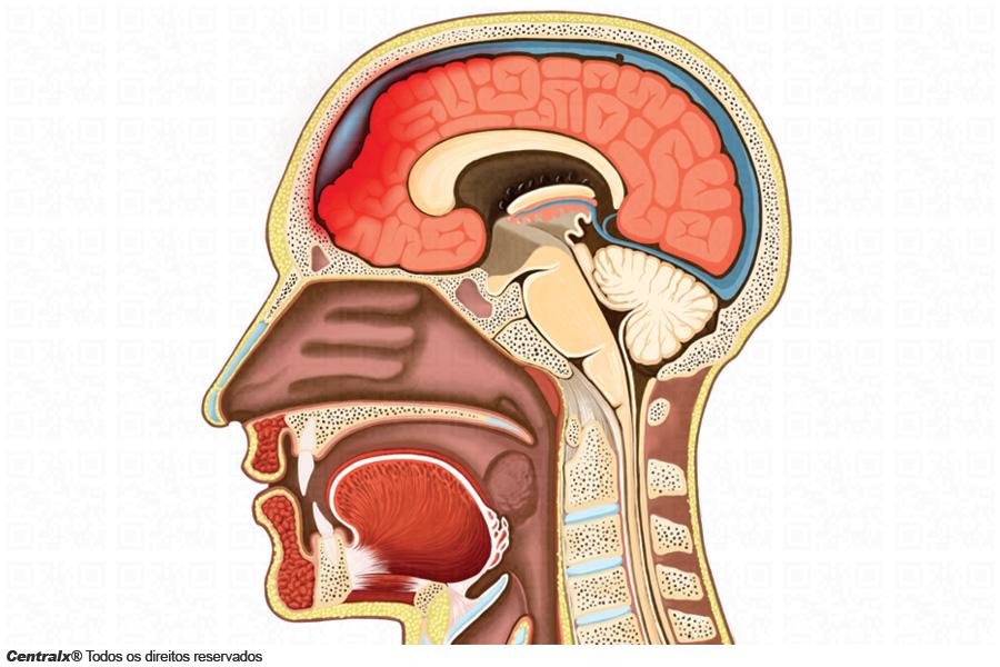 Edema de Cérebro