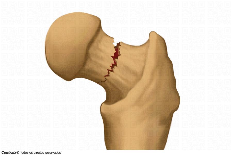 Fratura do colo do femur
