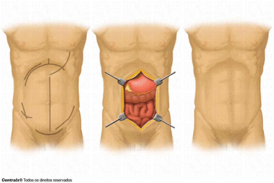 Laparotomia