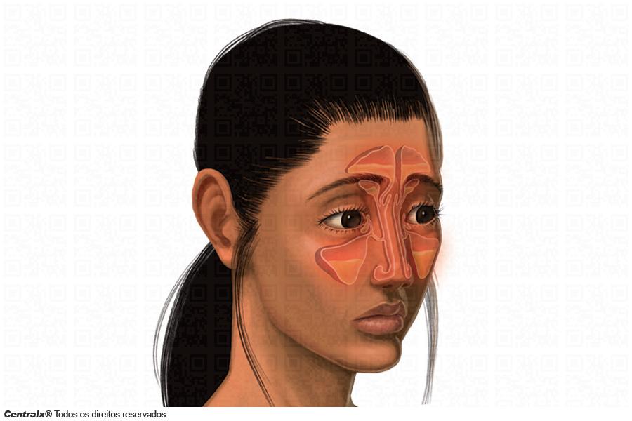 mi a sinus hipertónia