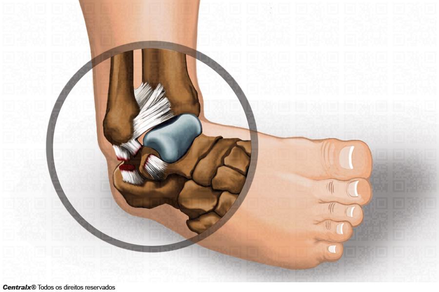 Torção do tornozelo