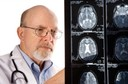 Acidente Vascular Cerebral ou Derrame Cerebral