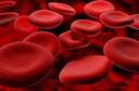 Anemia falciforme. Saiba mais sobre esta condição.