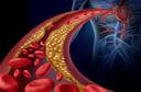 Aneurisma da artéria coronária