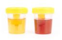 As cores da urina e suas relações com doenças e medicamentos