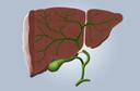 Câncer de fígado: causas, sintomas, diagnóstico, tratamento, evolução e prevenção