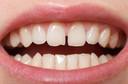 Dentes separados - você pode ter diastema!