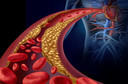 Disfunção endotelial - causas, características clínicas, diagnóstico, tratamento e prevenção
