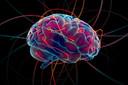 Doenças cerebrovasculares