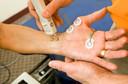 Eletroneuromiografia: você já precisou fazer?