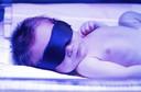 Fototerapia para a icterícia do recém-nascido
