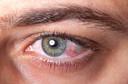 Olhos vermelhos? Pode ser conjuntivite.