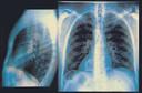 Radiografia contrastada: o que é? Por que fazer? Como é feita?