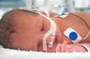 Síndrome da dificuldade respiratória dos recém-nascidos ou Doença da Membrana Hialina: como ela é?