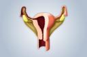 Sinéquias uterinas: o que é isso?