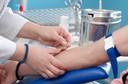 Uremia: conceito, causas, valores de referência, diagnóstico, tratamento e prevenção