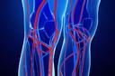 Venografia - uma radiografia dos vasos com o uso de contraste