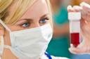 Sangue na urina - Você sabe o que é hematúria e por que ela acontece?